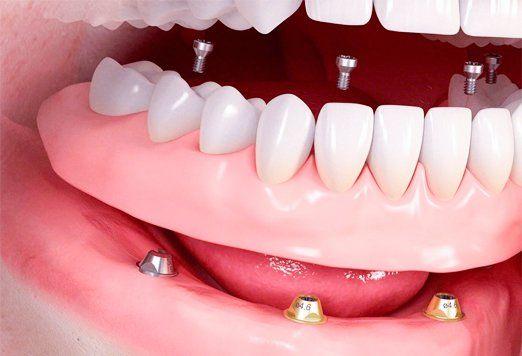 Имплантирование зубов в Москве