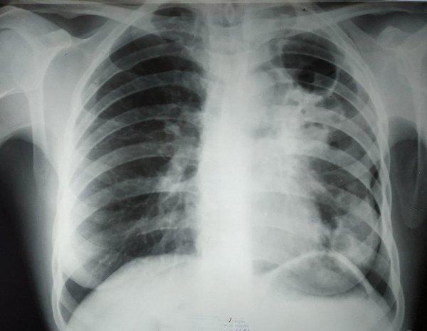 Стволовые клетки лёгких скрывают и защищают бактерии туберкулёза