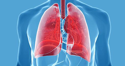 Рак легких: особенности заболевания